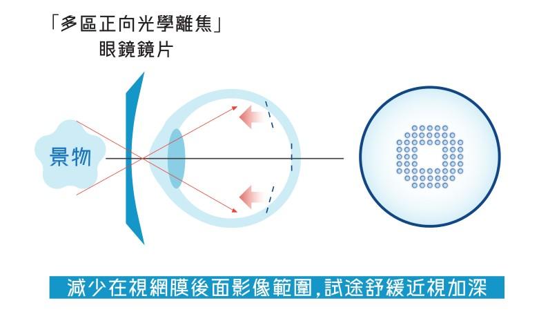 DIMS光學離焦鏡片